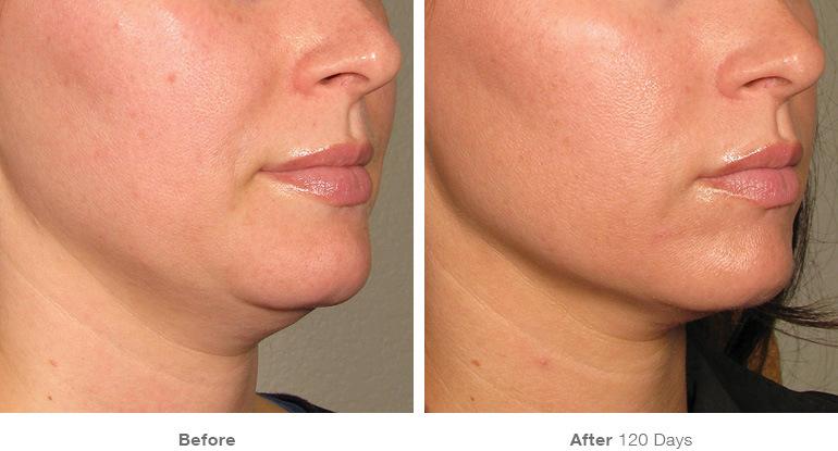 ultrasound results under chin