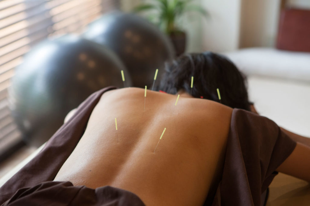 acupuncture-101