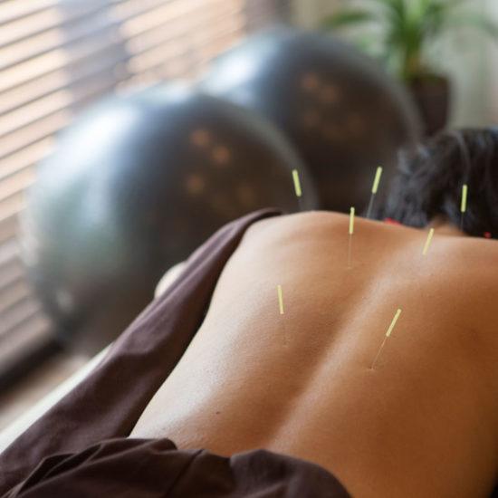 acupuncture-101